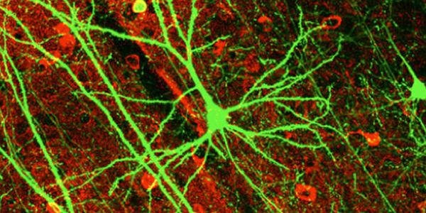 zenuwcel