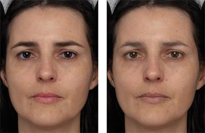 Links een gezicht met veel contrast. Rechts een gezicht met minder contrast. Het gezicht links lijkt aanzienlijk jonger. Foto: Gettysburg College.