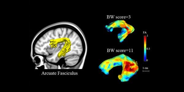 De scores ten opzichte van de organisatie van de fasciculus arcuatus. Afbeelding: Zeynep Saygin / MIT.