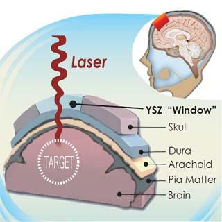 Een dwarsdoorsnede die laat zien hoe het transparante schedelimplantaat werkt. Afbeelding: University of California, Riverside