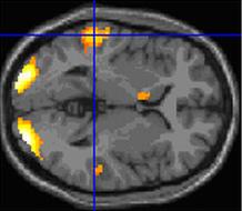fMRI-data van het onderzoek. Foto: University of Exeter