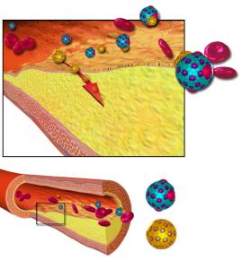 Atherosclerose en lipoproteïnen. Illustratie: Wikimedia Commons/