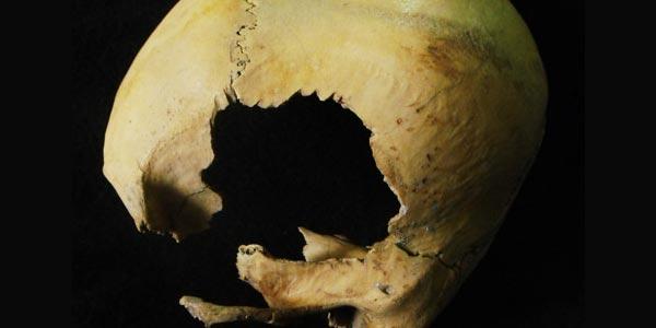 doorboorde schedel