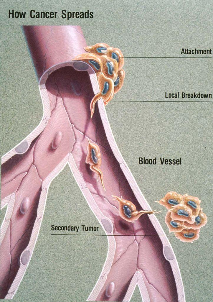 Hoe kanker zich verspreidt. Afbeelding: Jane Hurd / National Cancer Institute.