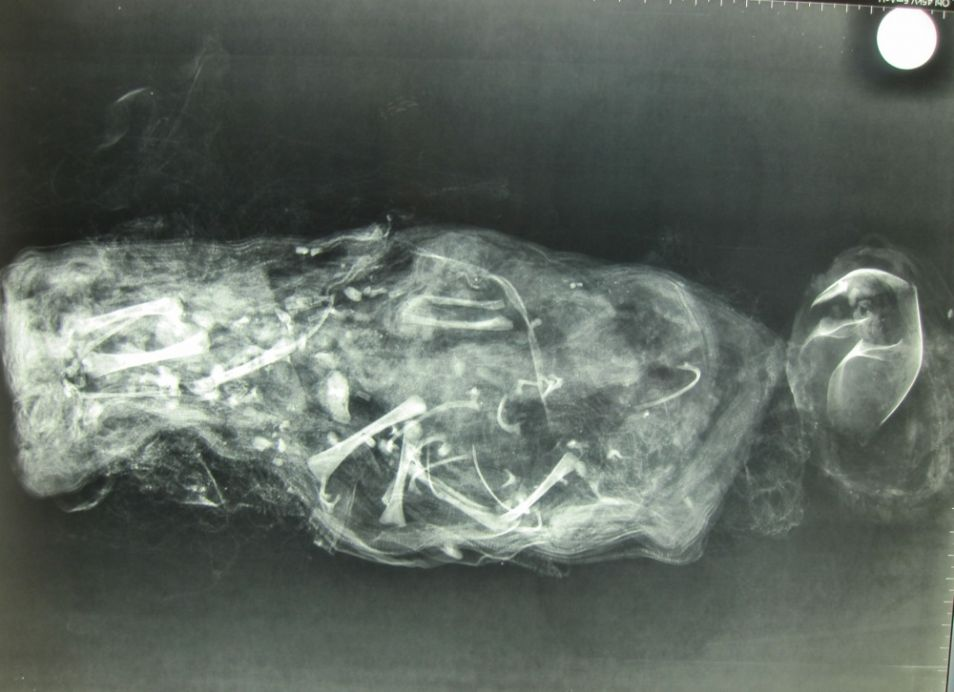 Op deze röntgenfoto is goed te zien dat het lichaampje in stukken is gesneden.