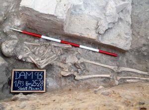 De botten van een gladiator. Afbeelding: Medische Universiteit van Wenen.