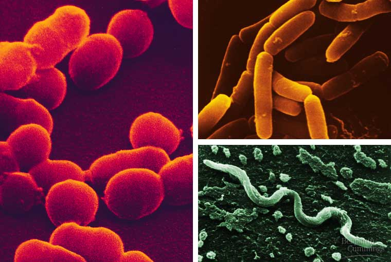 Verschillende verschijningsvormen van prokaryoten.