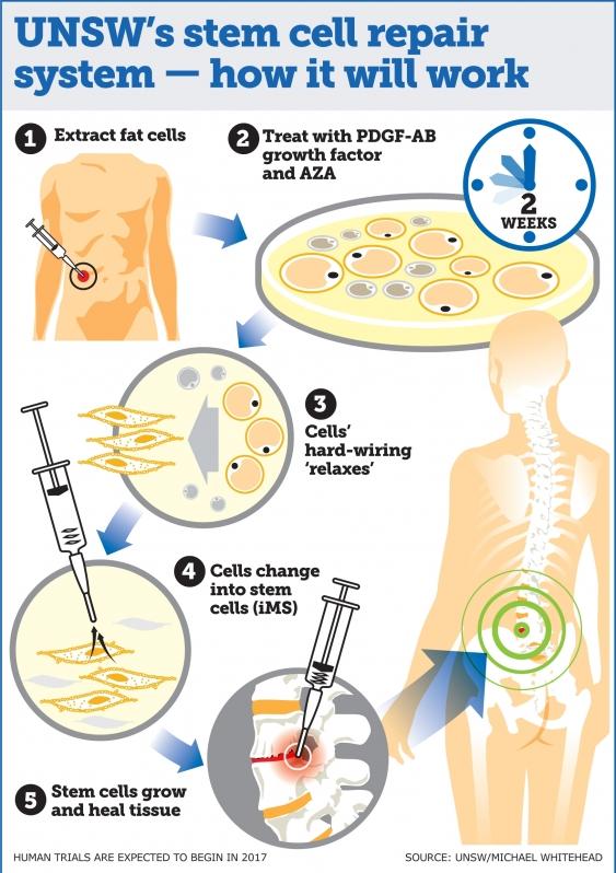 De stamceltherapie in beeld. Afbeelding: UNSW Media / Michael Whitehead.