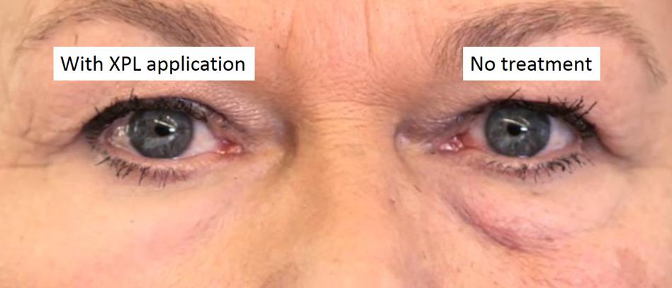 Links zie je wat er gebeurt als de coating aan wordt gebracht op de huid onder het oog. Rechts zie je de situatie zonder coating. Afbeelding: Olivo Labs.