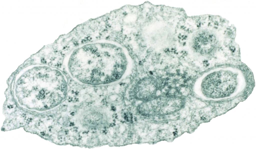 Wolbachia in de cel van een insect. Afbeelding: Scott O'Neill (via Wikimedia Commons).