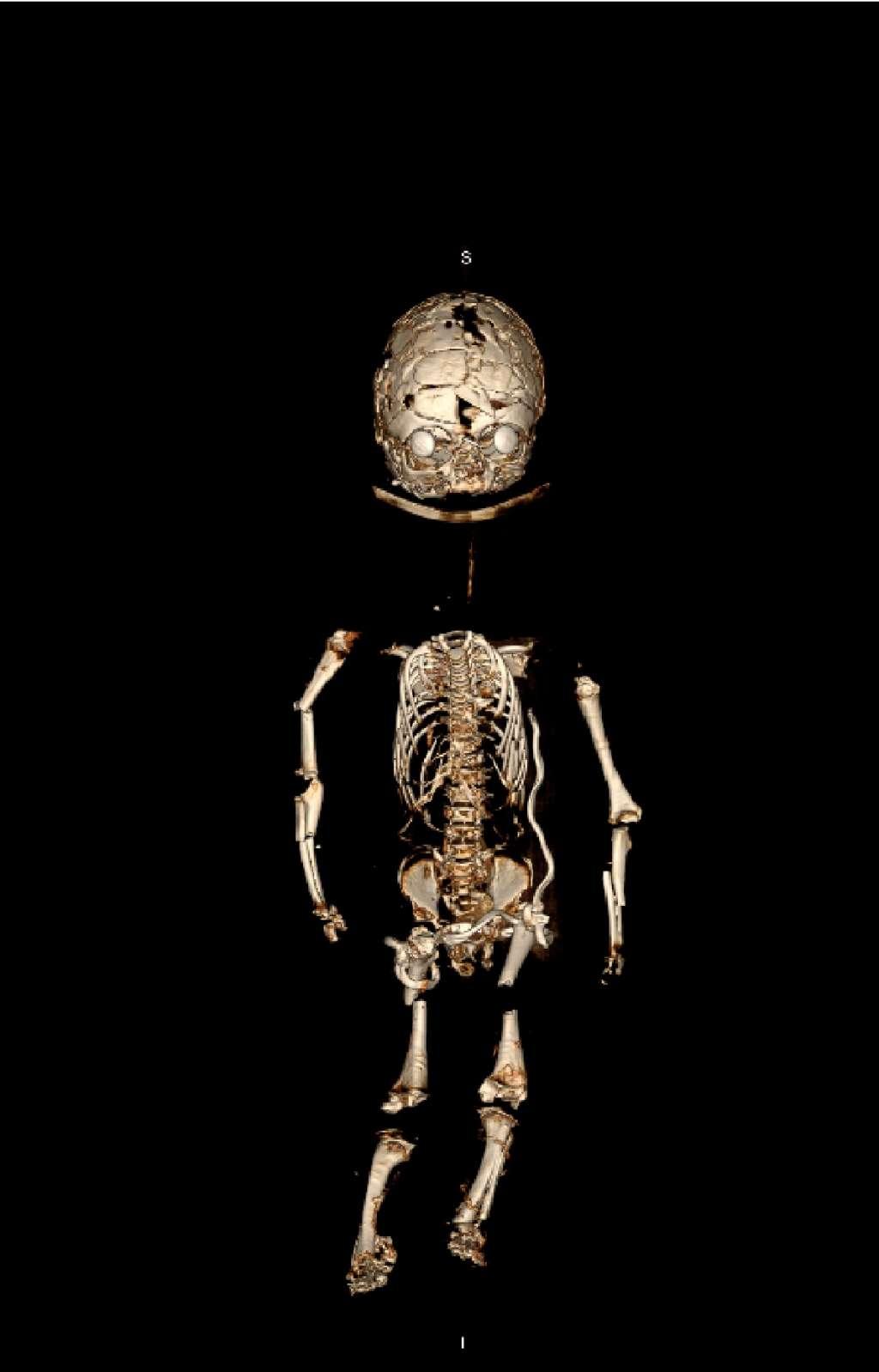 CT-scan van de zeemleren pop. Het skelet is duidelijk zichtbaar.