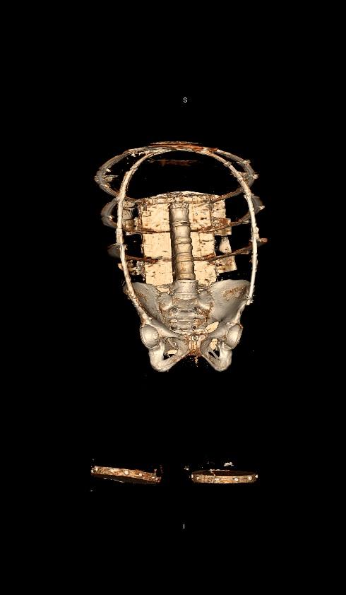 De CT-scan van de vrouwenromp. In de pop zijn veel botten verwerkt.
