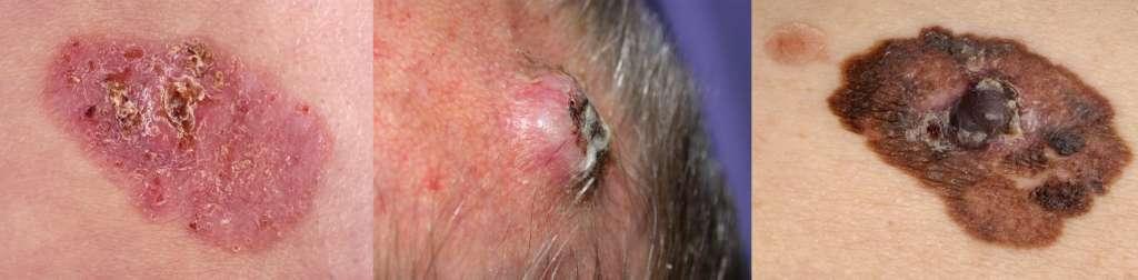 """Van links naar rechts: basaalcelcarcinoom - plaveiselcelcarcinoom - melanoom<br /> Afbeeldingen: <a href=""""https://www.huidziekten.nl"""" rel=""""noopener"""" target=""""_blank"""">www.huidziekten.nl</a>"""